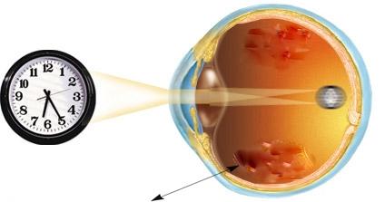Как можно вылечить зрение без операций