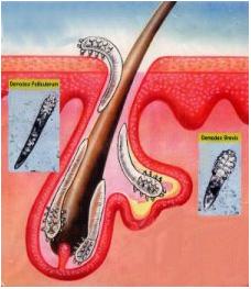 Гипотиреоз лечение клиника